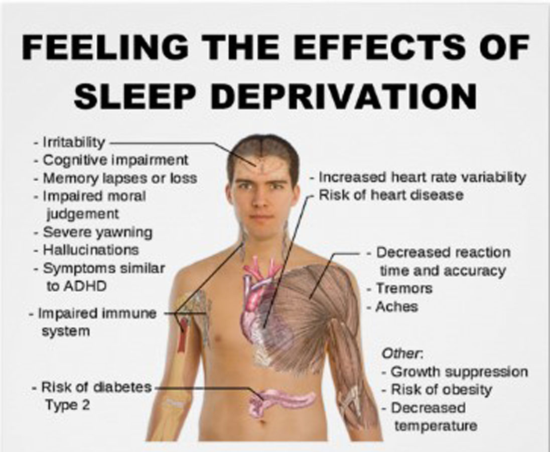 Sleep and Weight Loss: How Sleep Affects Your Diet picture